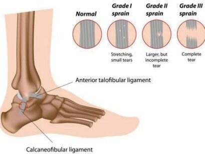 ricer no harm ligament